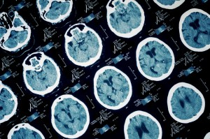 Do Women Experience Traumatic Brain Injuries Differently Than Men?