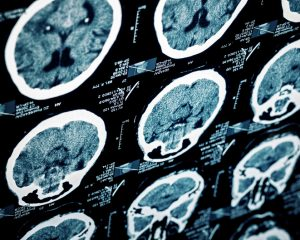 Traumatic Brain Injury Resources in Tennessee