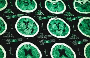 New Research Creating Hope that Doctors Will Have More Time to Respond to Brain Damage