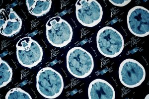 The Link between Traumatic Brain Injury and Alzheimer's