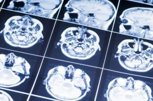 A Discussion on Recent Advancements in Helping Victims of a Traumatic Brain Injury