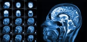 Services Provided for Victims of Traumatic Brain Injuries