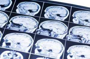 """Could """"Antifreeze"""" Molecules Be an Effective Treatment for Brain Injuries?"""